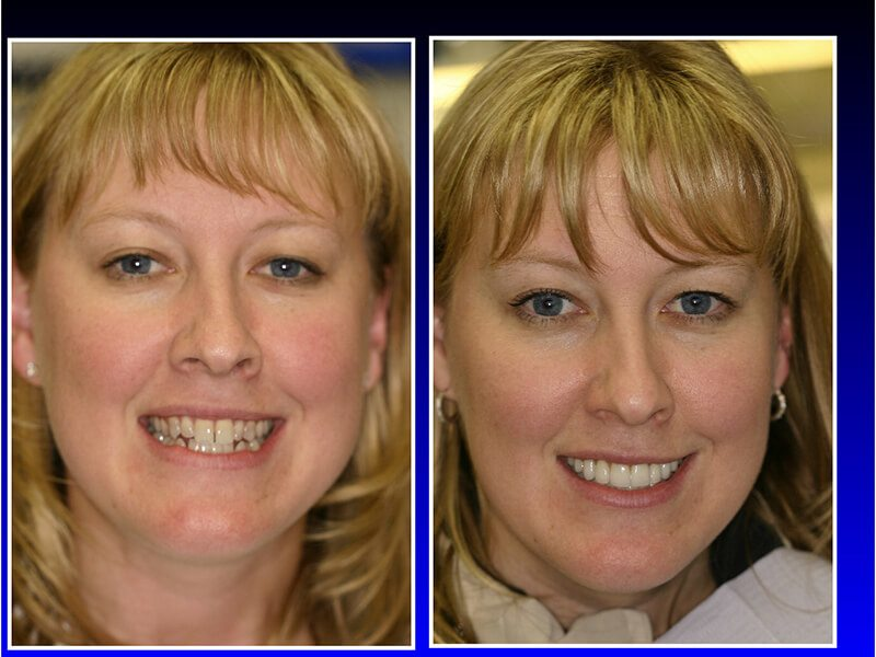 before and after a dental restoration
