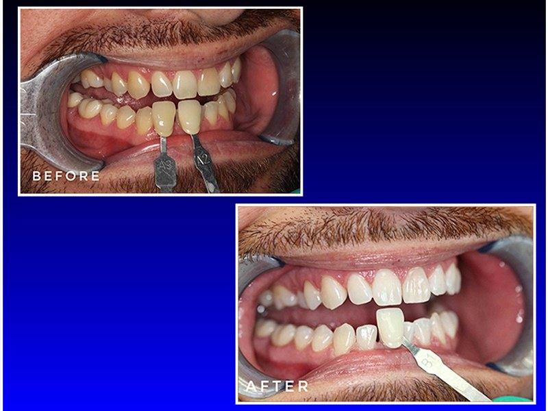 before and after a cosmetic dental procedure and teeth whitening