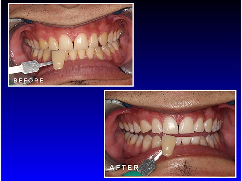 before and after a cosmetic dental procedure