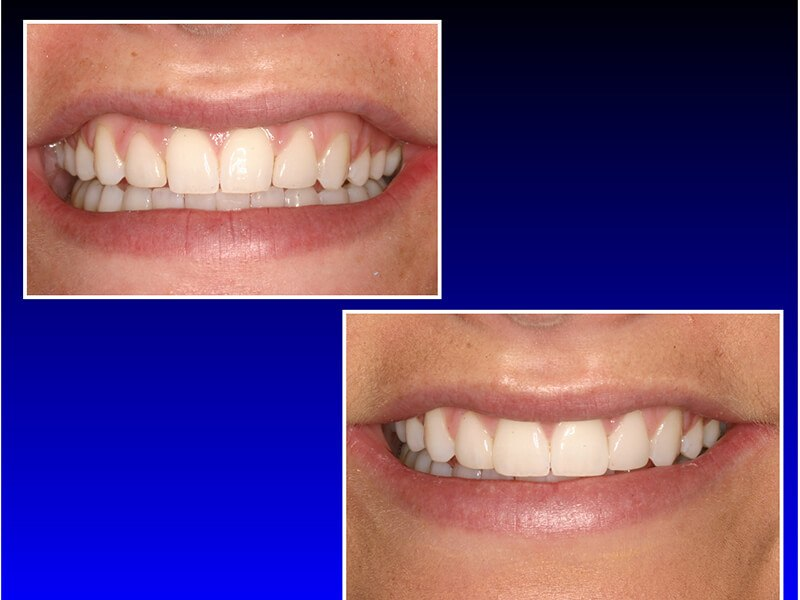 before and after a smile makeover from Yakima Smiles