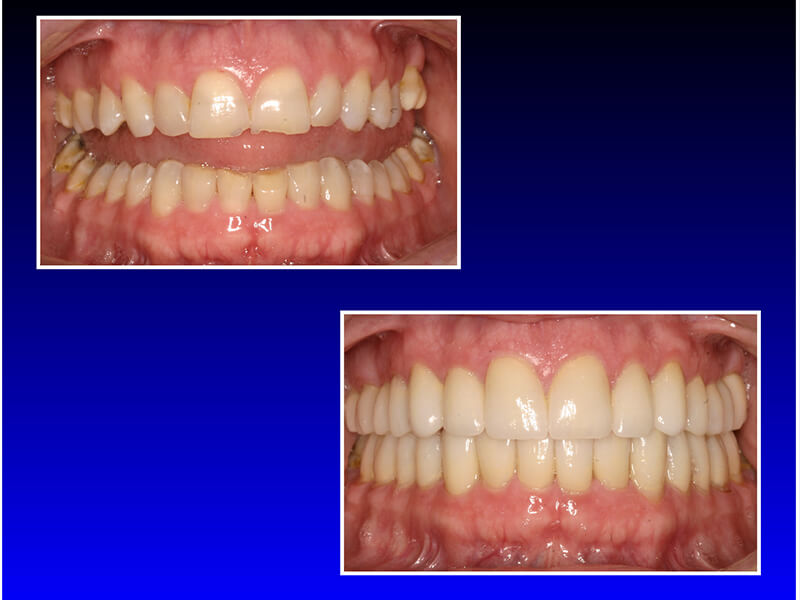 before and after a smile make over and teeth restoration