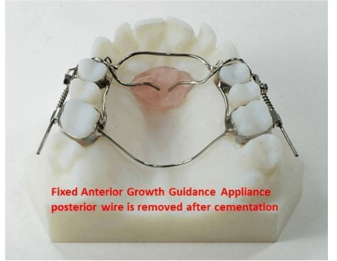 fixed anterior growth appliance