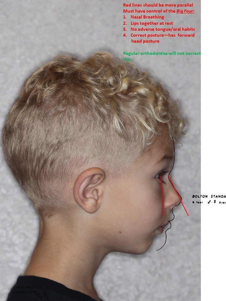 Face And Jaw Development In Children Your Dentist In Yakima Wa